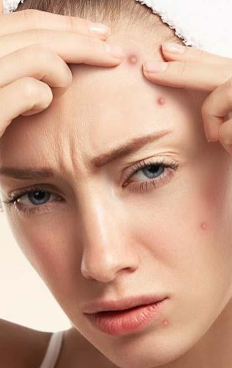 Hati-Hati! 5 Kebiasaan Ini Bisa Membuat Jerawat Betah Di Wajahmu